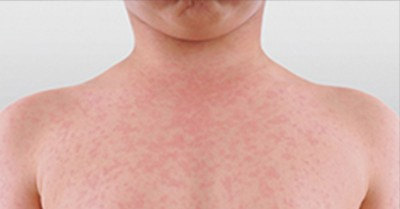 Measles Alert For Brisbane